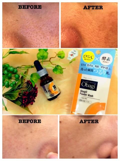 角栓 酵素洗顔